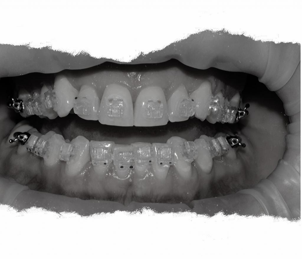 c-fast braces